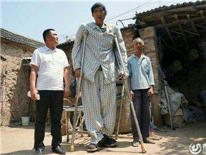 山东青年身高2.4米