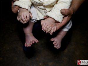 """湖南男婴患罕见""""多指症"""",总共31根手指脚趾"""