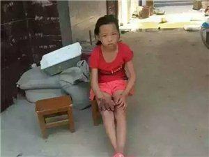 十几岁的小女孩,希望爱心人士能帮一把,特别是医生!