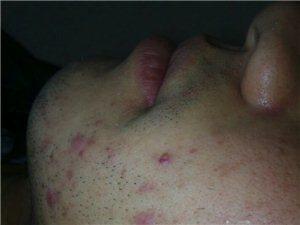 佐康专业治疗青春痘,痤疮,粉刺,只祛痘更专业