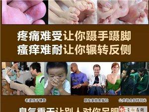 专业治疗灰指甲